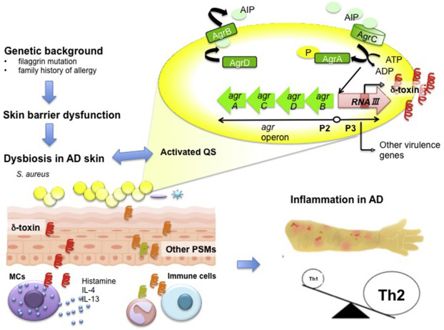 Tratamentul metodele tradiționale eczeme