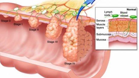 ce simptome ai la cancerul de colon)