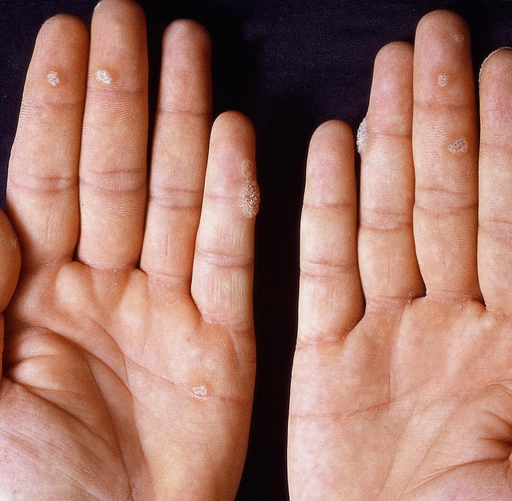 hpv warzen hand