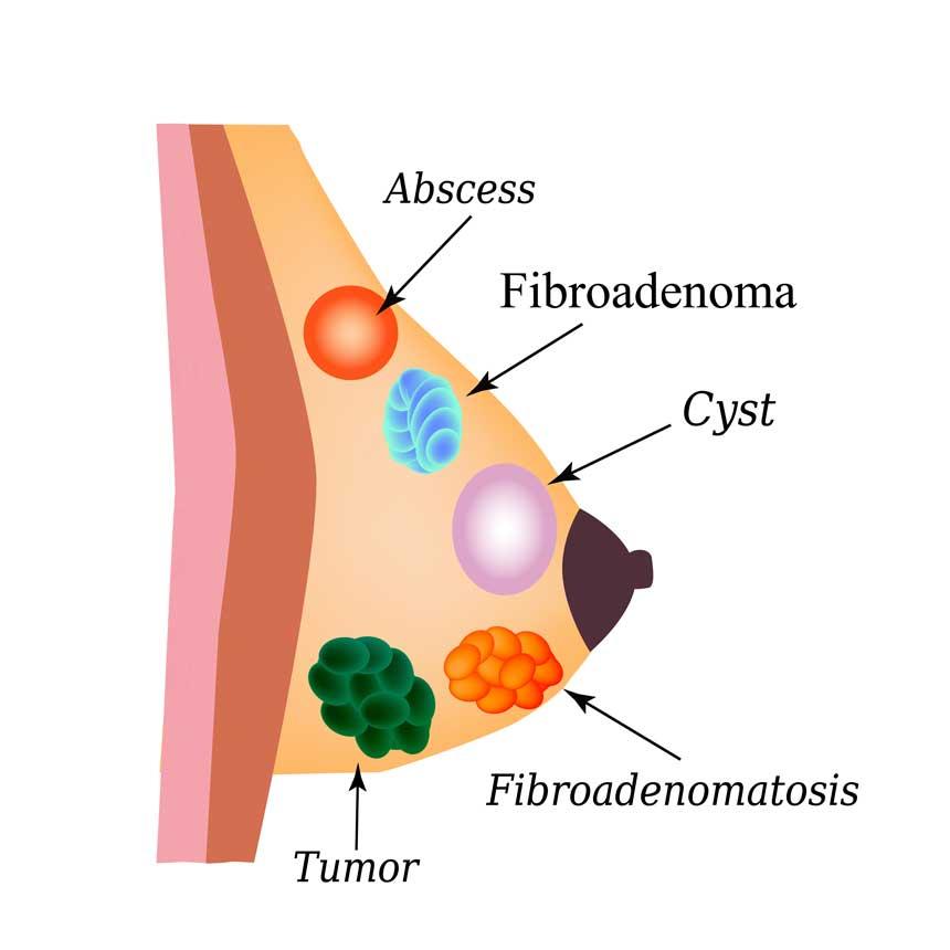 Cancer - Wikiwand
