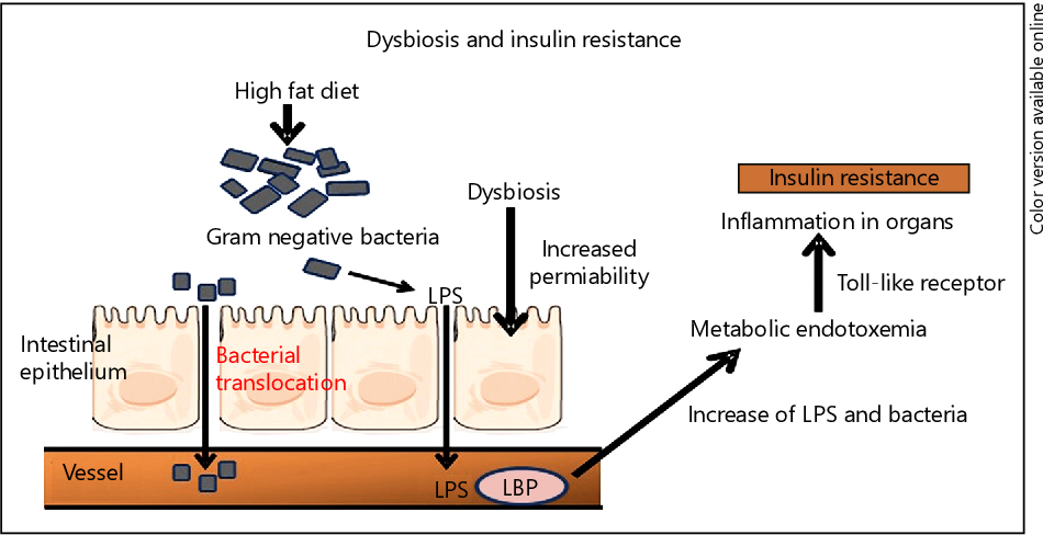 diabetes type 2 dysbiosis