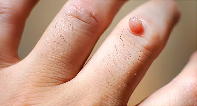 wart virus symptoms