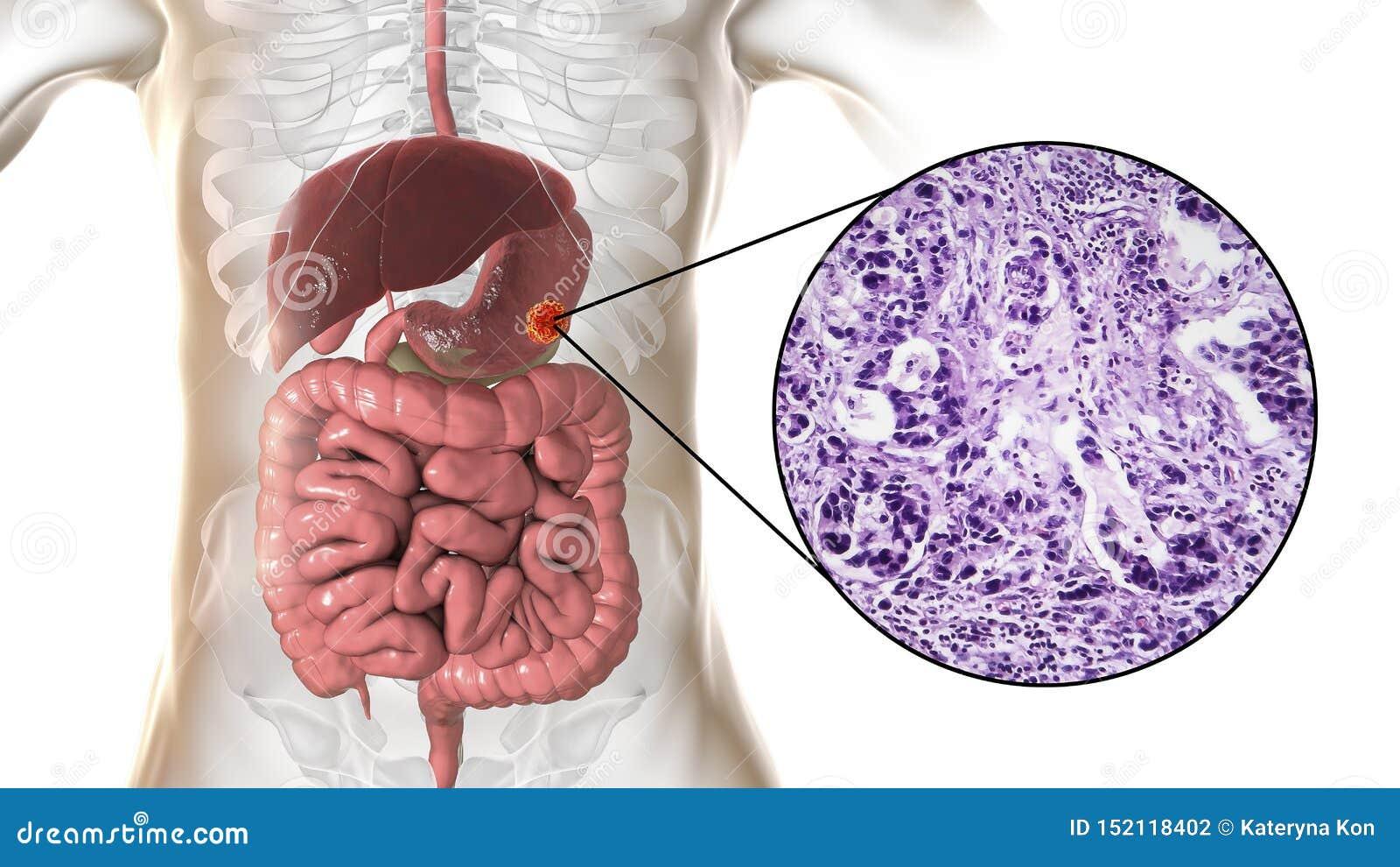 gastric cancer or adenocarcinoma)