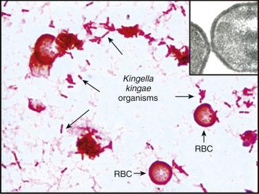 bacterie kingella kingae etiologi human papillomavirus