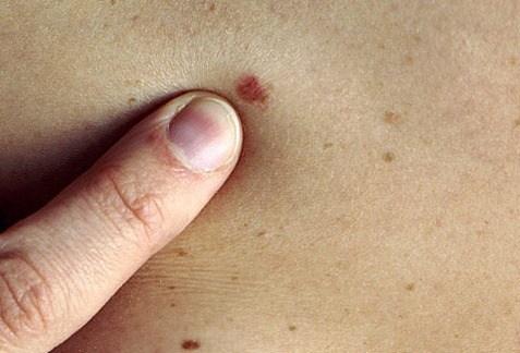 Riscurile la care te expui cand iti faci un tatuaj