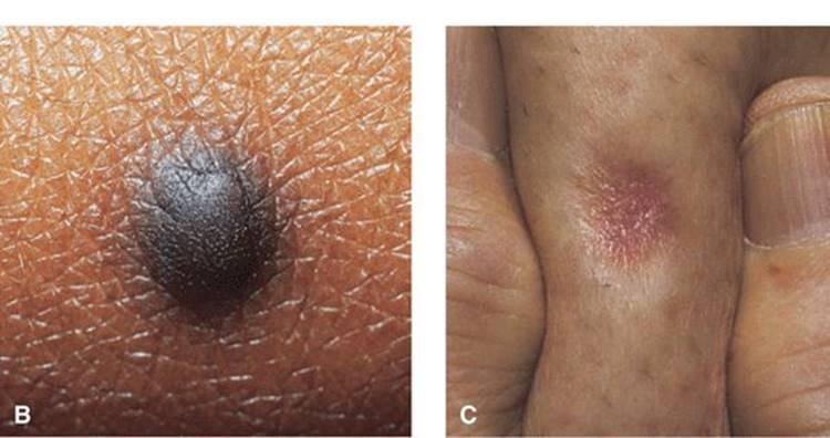 simptomi parazita u stolici kod djece