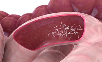 medicamente pentru viermi intestinali spital de dezintoxicare cluj