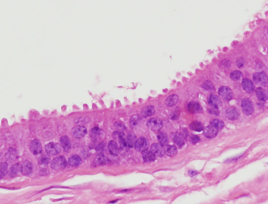 intraductal papilloma moose and doc