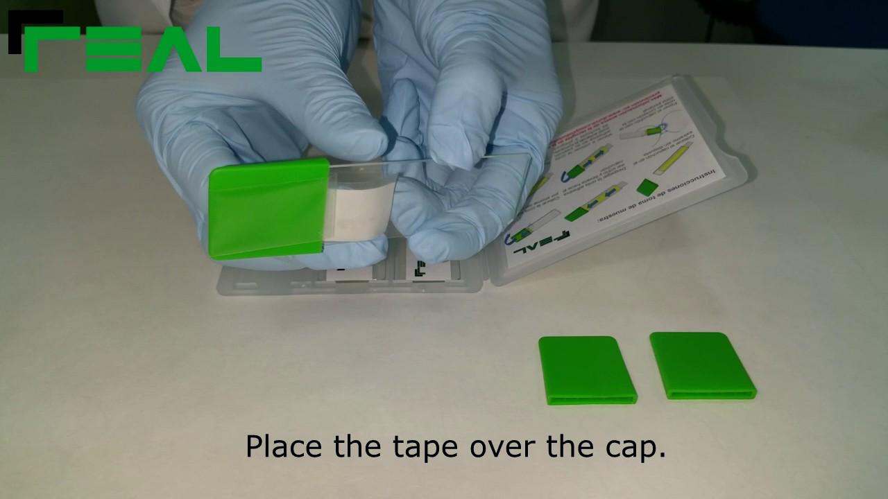 oxiuros test de graham cancerul de piele