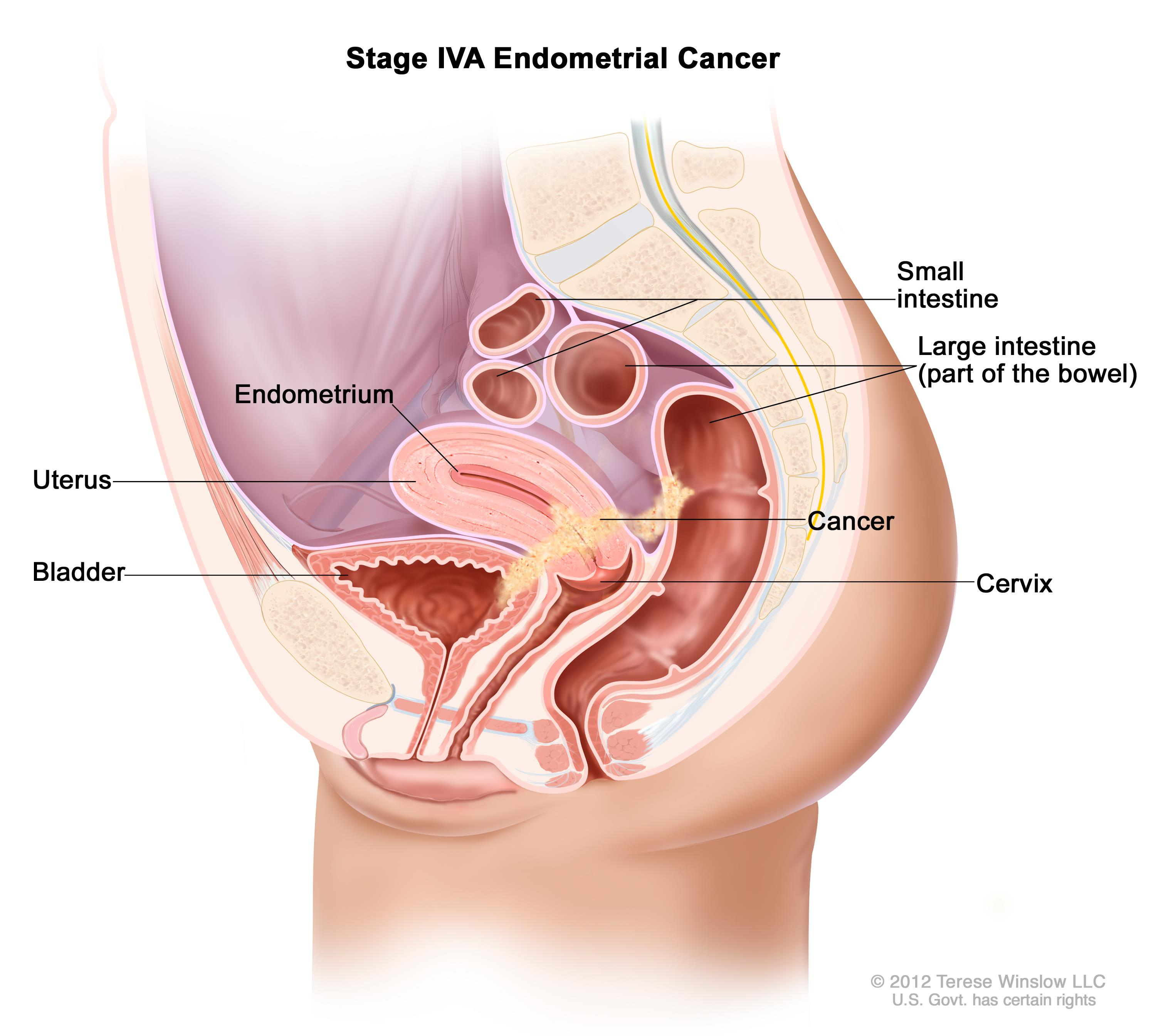 endometrial cancer in colon)