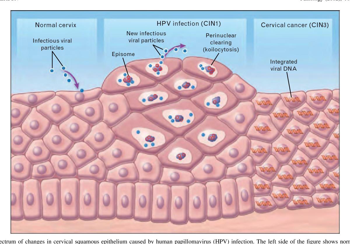 human papillomavirus changes present)