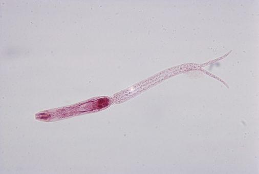 Definiție schistosomiasis. Ce Înseamnă Cuvântul schistosomiasis?