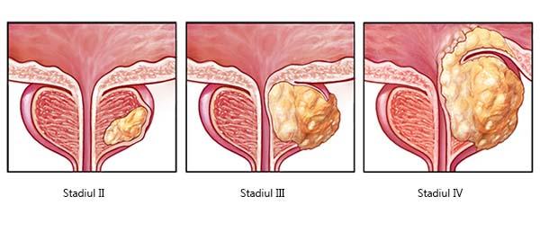 cancerul malign de prostata)