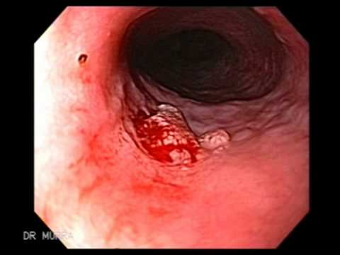 esophageal papilloma cancer