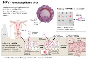 papilloma virus su ugola hpv virus with pregnancy