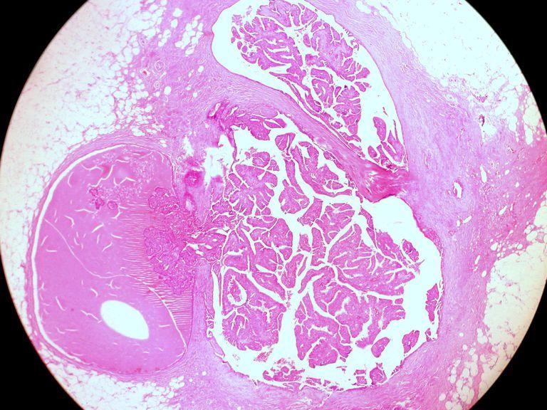 papilloma condotto al seno)