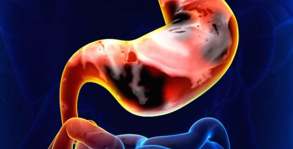 paraziti peste crud egypt hepatitis c schistosomiasis