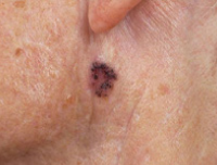 warts and skin cancer