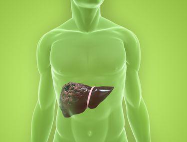 cancer la ficat operatie cancer colon early symptoms