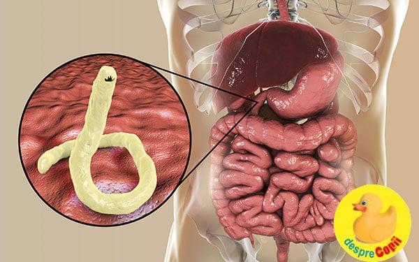 infectia cu paraziti intestinali)