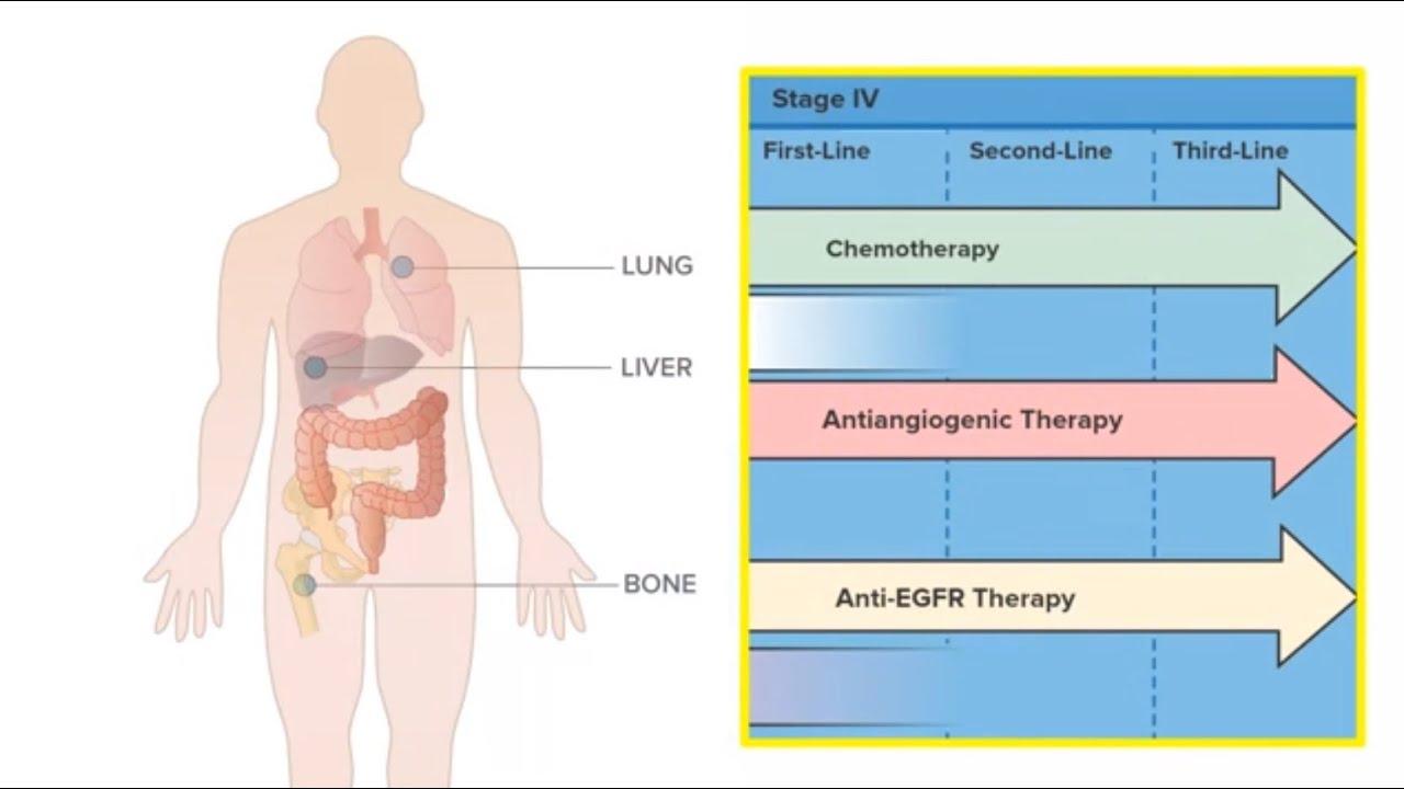 rectal cancer with metastasis