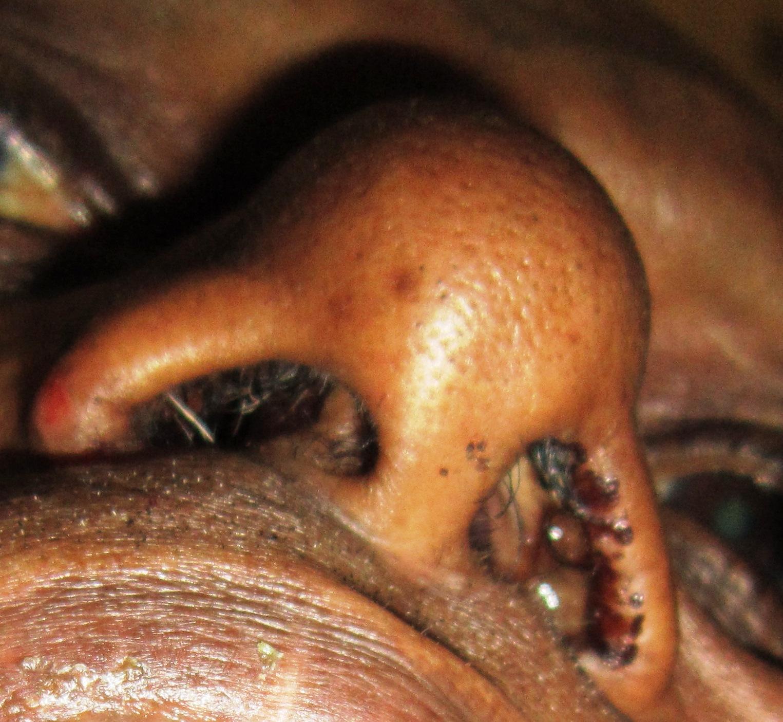 nasal papillomas)