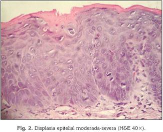 papiloma laringeo histologia
