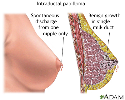 papillomas definition