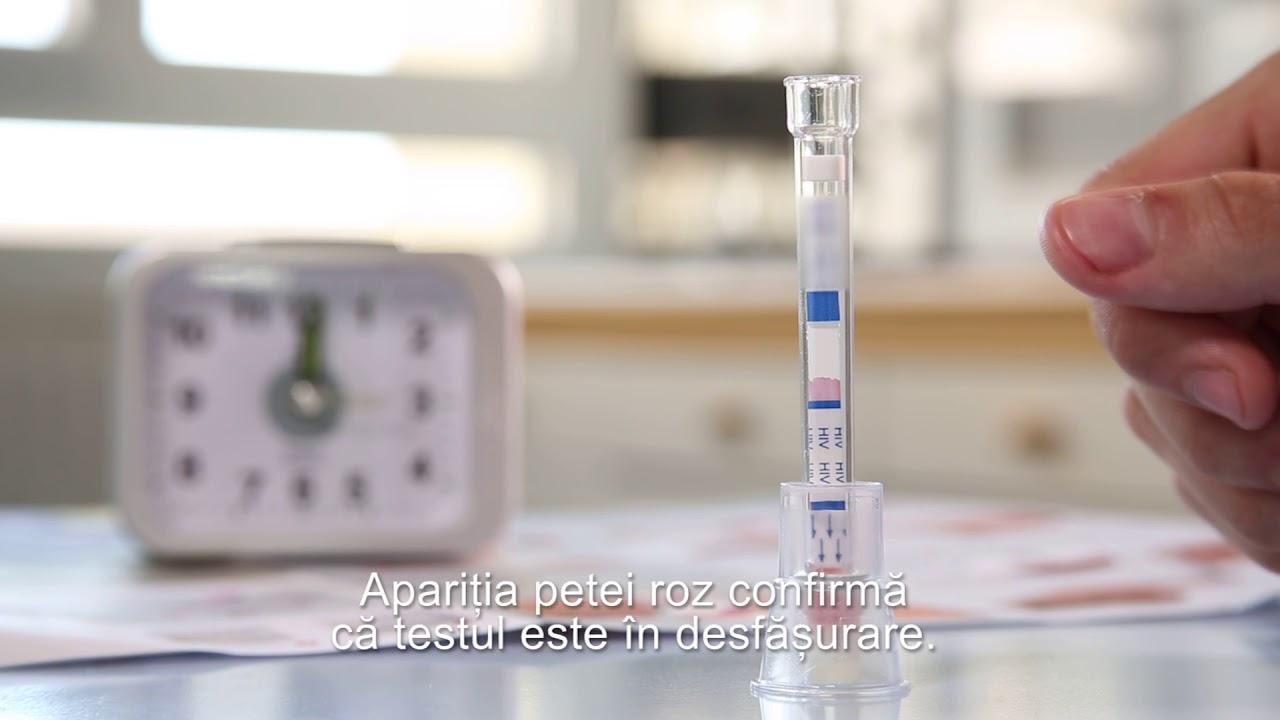 Fă-ţi testul HIV măcar o dată pe an!