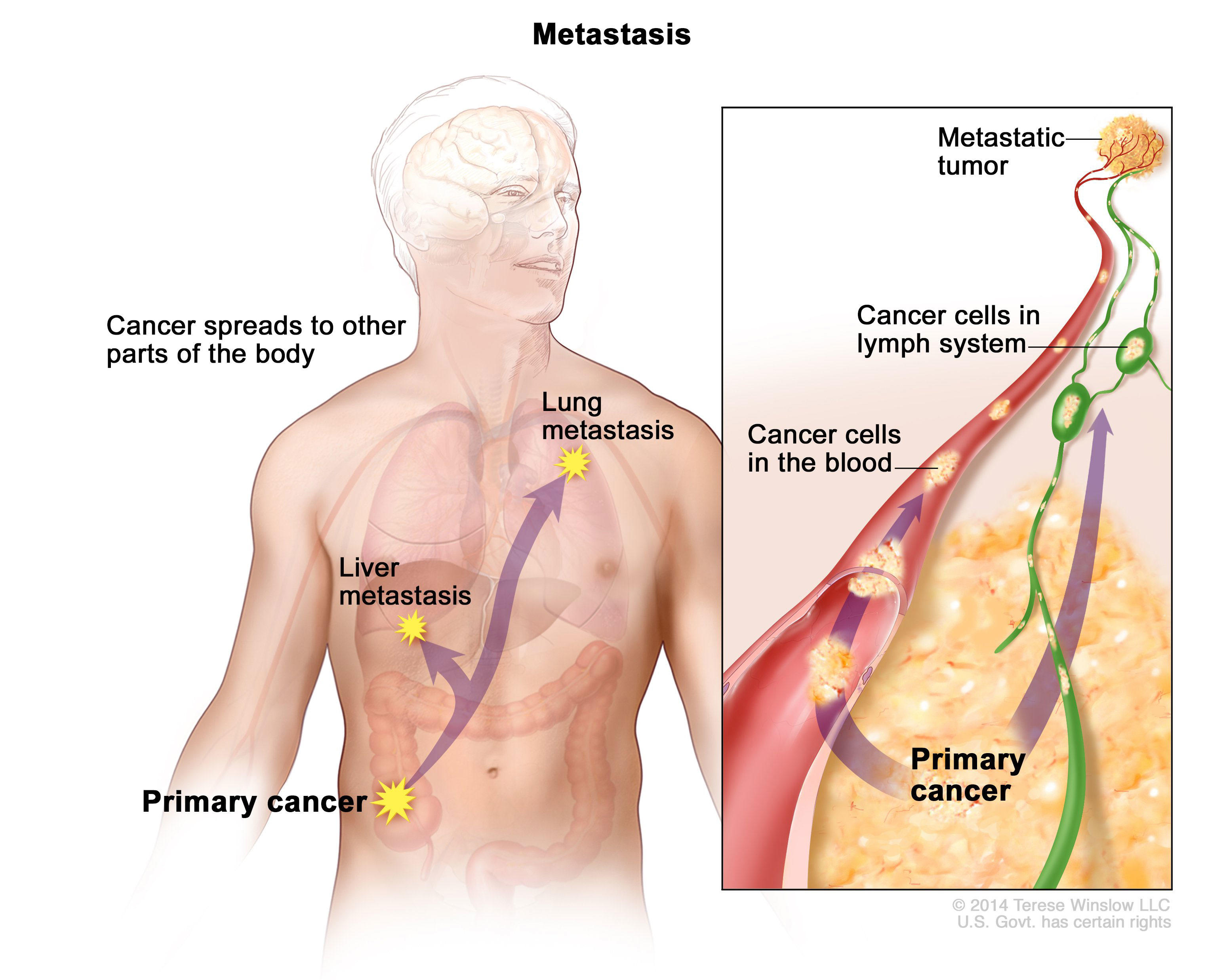 metastatic cancer and carcinoma