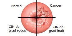 cancer de col uterin tratare cancer pecho hormonal