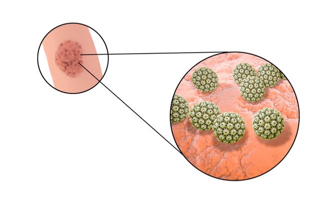 papilloma virus uomo incubazione