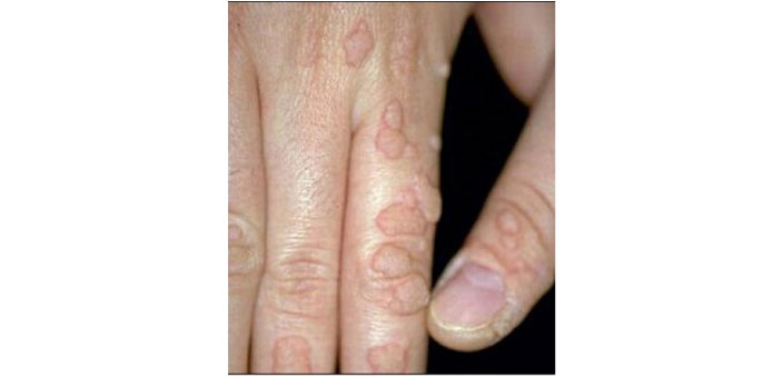 warts on hands multiplying)