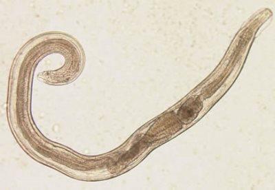 crijevni paraziti kod djece simptomi