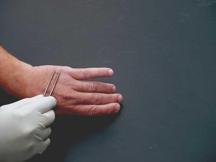 filiform wart on eyelid treatment)