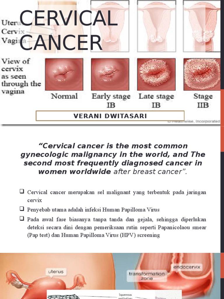 Etapele precoce ale cancerului de col uterin Simptomele și prevenirea