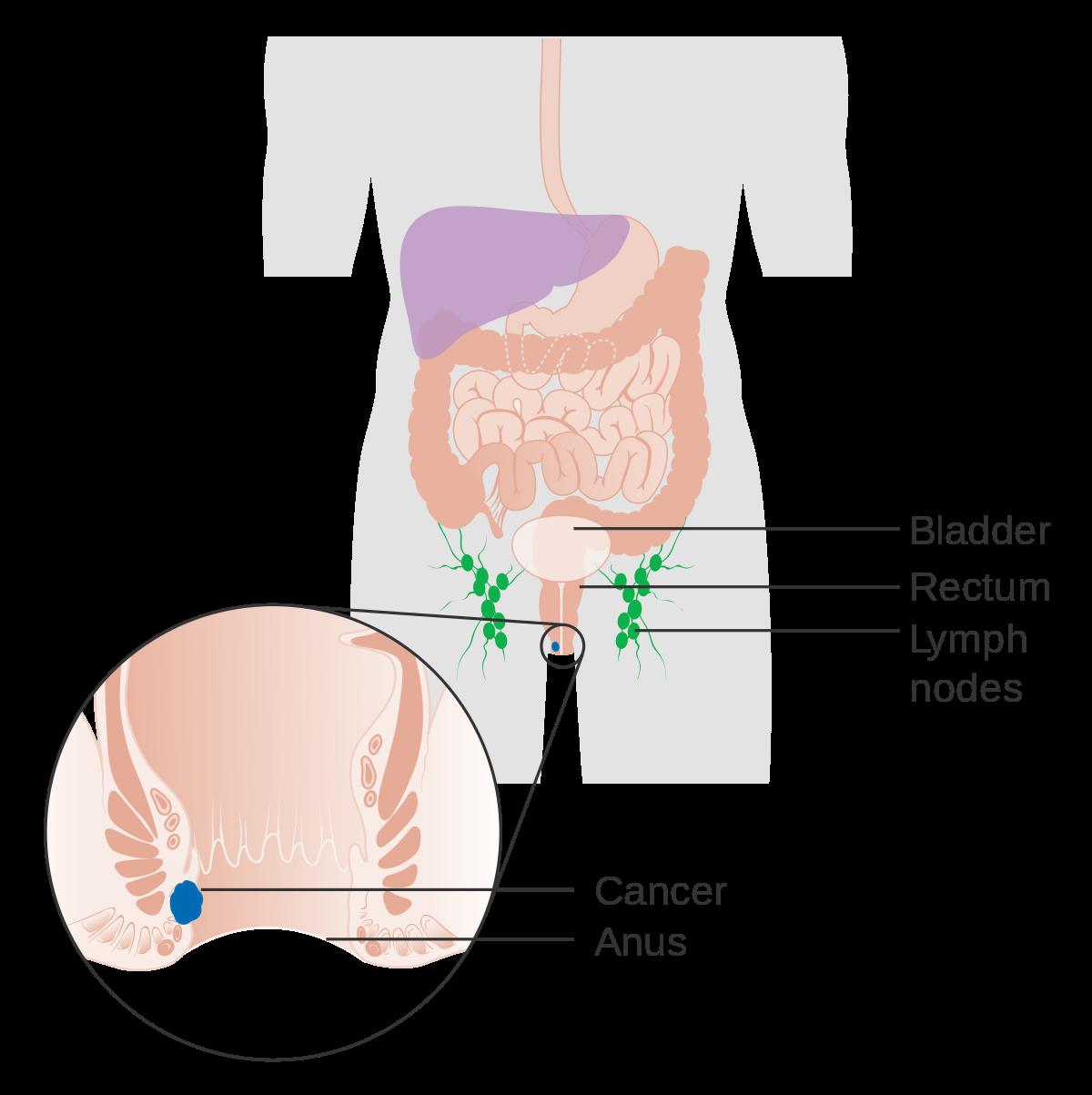 hpv cancer de colon