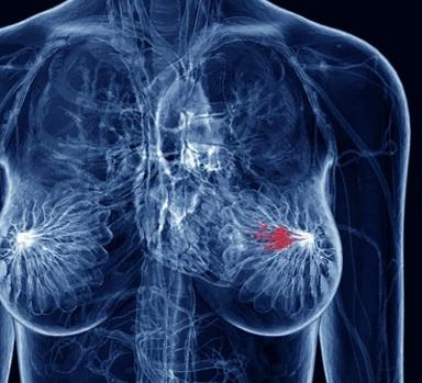 hpv cancer de mama