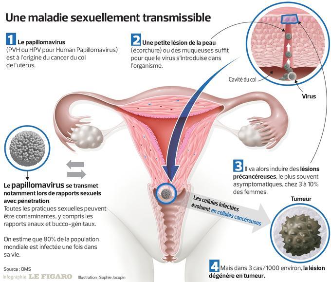 hpv cancer femme)