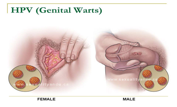 hpv cancer vs warts