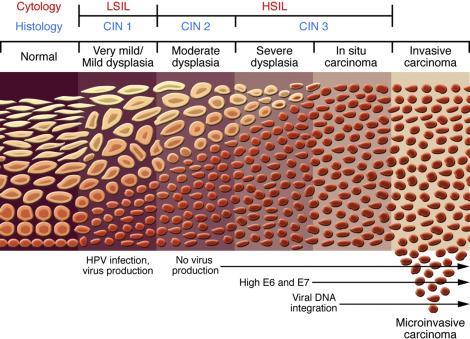 hpv carcinoma in situ zellveranderung durch hpv virus