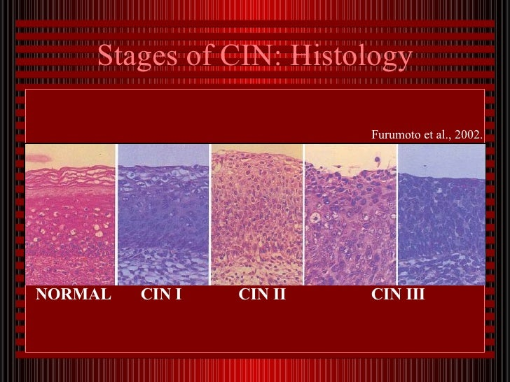 hpv cervical cancer stages)