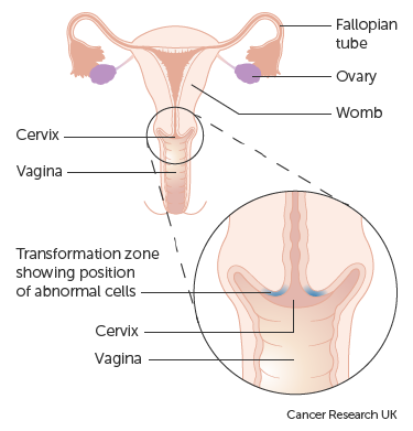 hpv cervical removal)