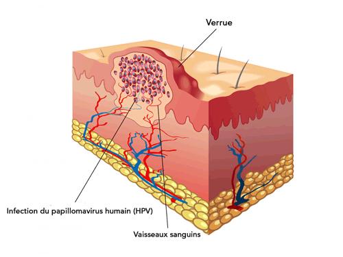 Unguent prescripție împotriva varicelor