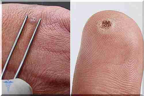 cancer na laringe e faringe wart foot spray