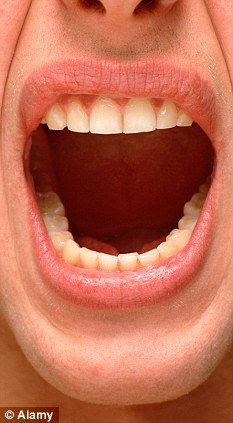 hpv mouth lips hpv caused cervical cancer