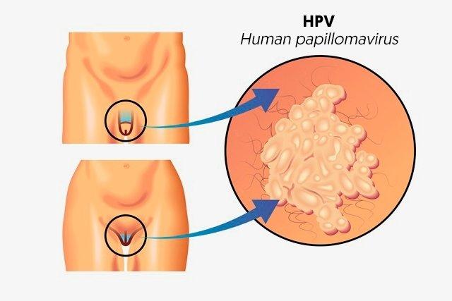 hpv papilloma virus trasmissione)