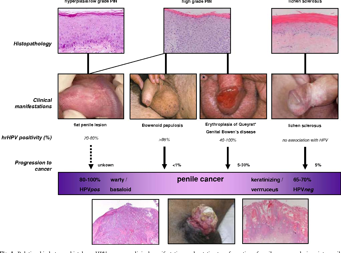hpv penile cancer treatment