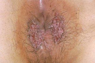 cancer piele cauze spirituale nasal papilloma contagious