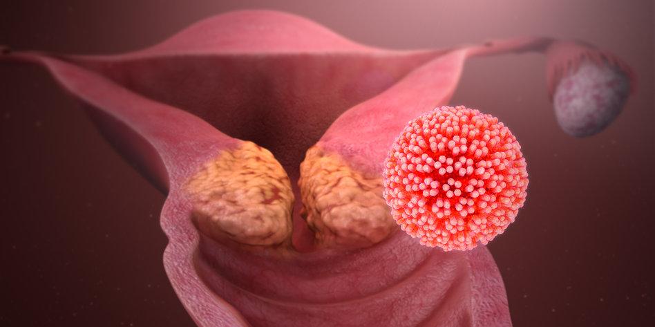 hpv virus mann krebs cancer colon melena